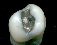 Amalgam Zahnfüllung