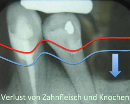 Verlust von Zahnfleisch und Knochen bei Parodontose