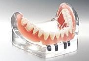 Dr. Thomas Steinmeier Zahnarzt Oeynhausen Zahnarztpraxis Implantate Zahnprothese Zahnerhalt Zahnheilkunde OWL Zahnimplantologie