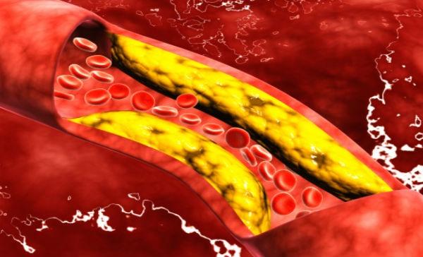 El Cloruro de Magnesio normaliza los niveles de colesterol