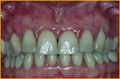 Zahnfleisch vor der Behandlung