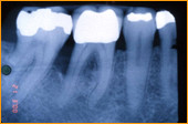 Röntgenaufnahme Kiefer / Zähne