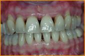 Zahnfleisch nach der Behandlung