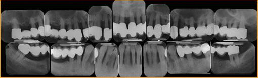 Röntgenaufnahmen Kiefer / Zähne