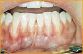 Abbildung Mundhöhle mit Zahnfleischrückgang