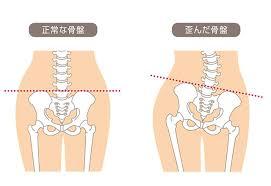 しんそう福井武生では、歪んだ骨盤を正常な形に戻していきます。