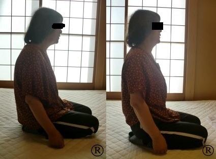 しんそう福井武生では、猫背などの身体の歪みを改善し、腰痛などを解消していきます。