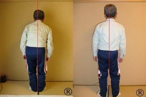 しんそう福井武生では、腰痛肩こり座骨神経痛などの症状は身体の歪みが原因だと考えています。