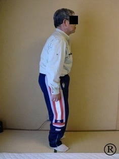 しんそう福井武生に来られた身体が歪んでいる男性