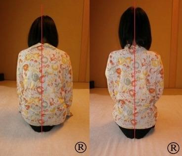 しんそう療方で姿勢がよく鳴り、腰痛肩こりと一緒に、ウエストまで細くなった症例