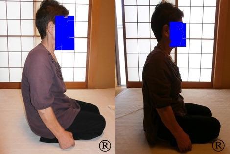 しんそう福井武生での施術前後で、猫背が改善し、腰痛、座骨神経痛も良くなりました。