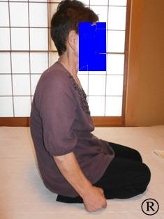 しんそう福井武生で施術する前の、猫背で腰痛、座骨神経痛の患者さん