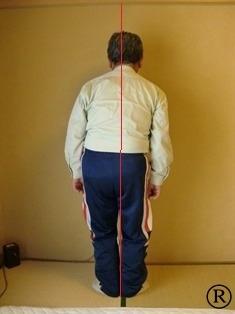 しんそう福井武生に来られた身体が歪んだ男性