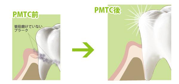 PMTCビフォアアフター