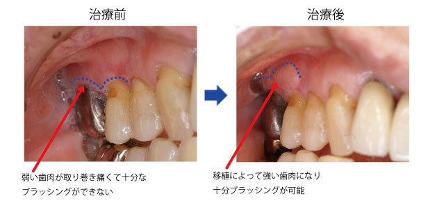 歯肉移植術