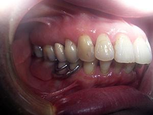 入れ歯使用時
