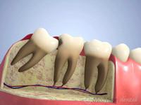 手前の歯がむし歯
