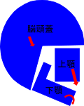 不正咬合者の典型的な頭と顎の骨格
