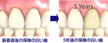 保険の白い歯の5年後