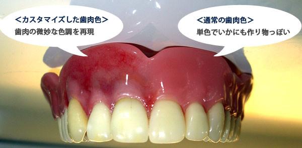 歯肉の微妙な色調を再現した入れ歯