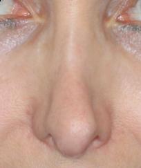 Voroperierte Nase mit Kollaps des Nasenrückens