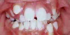 スマイルクリニック |大分市 矯正歯科|症例