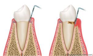 PZR kann einer Parodontose vorbeugen und schützt möglicherweise sogar vor einer Parodontose-Behandlung. © Alexilus - Fotolia.com
