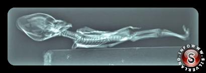 Alieno del Cile raggi X