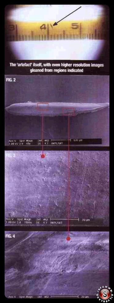 Impianti alieni