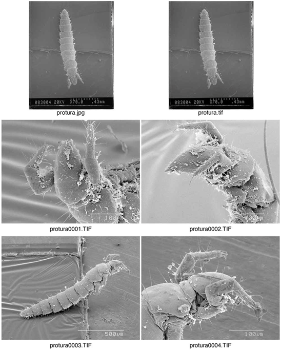 Figure 7 : série 1 de photographies d'un protoure vu au microscope électronique : GREGORY S. PAULSON, Ph.D.