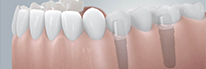 Zahnarztpraxis Domsch Implantologie