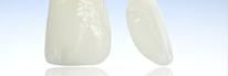 Zahnarztpraxis Domsch Veneers