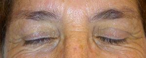 Maquillage permanent sourcils avant