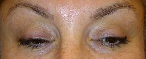 Remplissage des sourcils en dermopigmentation avant