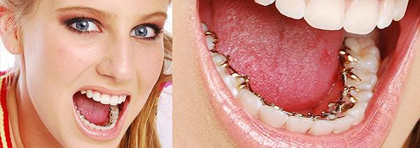 Traitements d'orthodontie linguale, invisibles