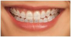 Traitements d'orthodontie discrets