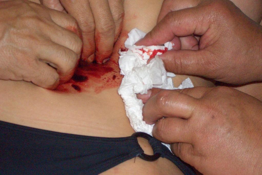 Bei der Behandlung einer Frau aus der Reisegruppe. Die Haut wird dabei nicht verletzt.