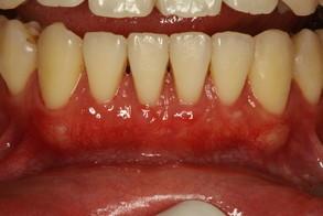 矯正後の歯茎の退縮を回復させる