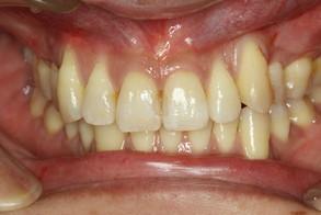 矯正治療後に歯茎が下がってしまったケース