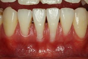 矯正後の歯茎の退縮