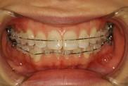歯列矯正モニターのスタンダードな装置