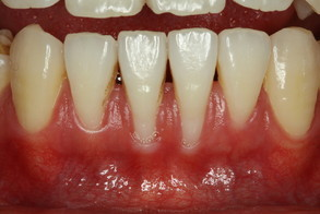 矯正と歯茎退縮