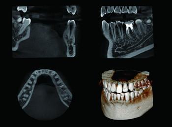 歯茎の中の骨のCT像