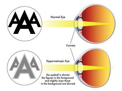Hyperopia. Natural eyesight improvement. Alternative to glasses. Pinhole glasses. Bates Method Teacher. Bates Method exercises. How to improve my eyesight naturally.