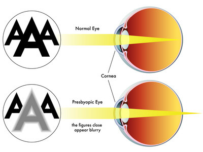 Presbyopia. Natural eyesight improvement. Alternative to glasses. Pinhole glasses. Bates Method Teacher. Bates Method exercises. How to improve my eyesight naturally.
