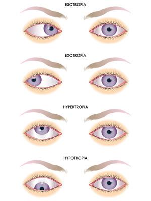 Strabismus. Natural eyesight improvement. Alternative to glasses. Pinhole glasses. Bates Method Teacher. Bates Method exercises. How to improve my eyesight naturally.