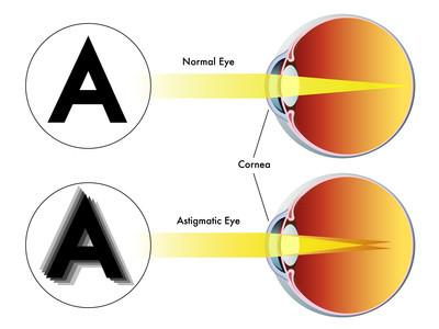 Astigmatism. Natural eyesight improvement. Alternative to glasses. Pinhole glasses. Bates Method Teacher. Bates Method exercises. How to improve my eyesight naturally.