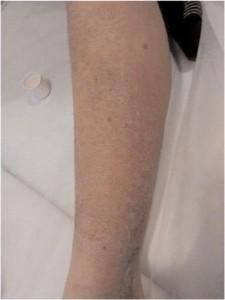 Nach dreiwöchiger Anwendung des Geräts DeVita Ritm und  1x Behandlung mit DeVita Cosmo
