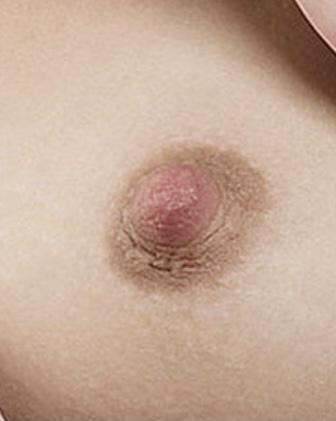 Brustwarzen Korrektur Pigmentierung 3 Behandlung