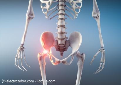 Die 3 wichtigsten Übungen gegen Hüftschmerzen